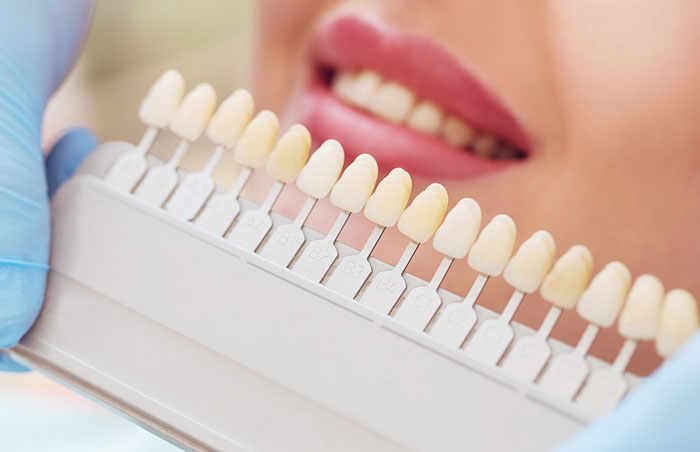 Coloration dents 2